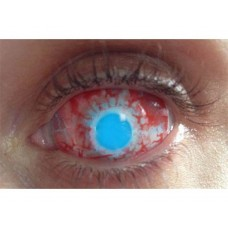 ZOMBIE SCLERA 22mm lenses