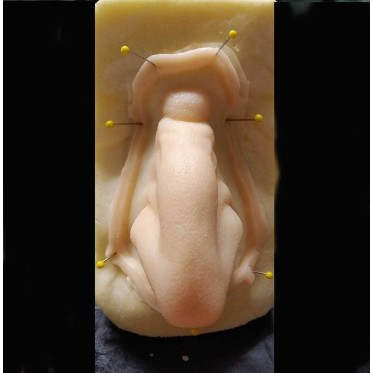 WITCH 2 encapsulated silicone prostheses